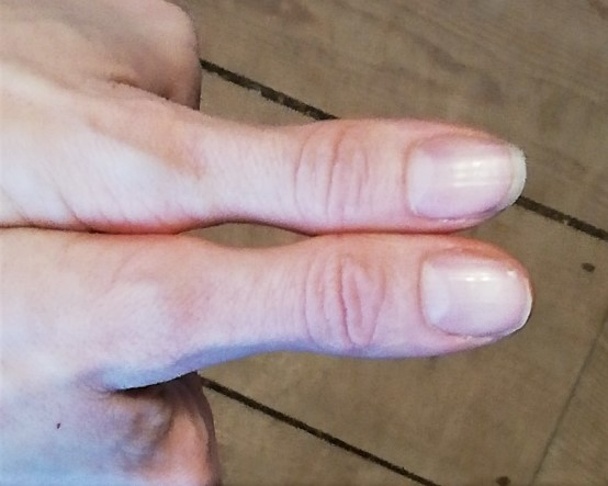 Thumbs used to measure fats portion size